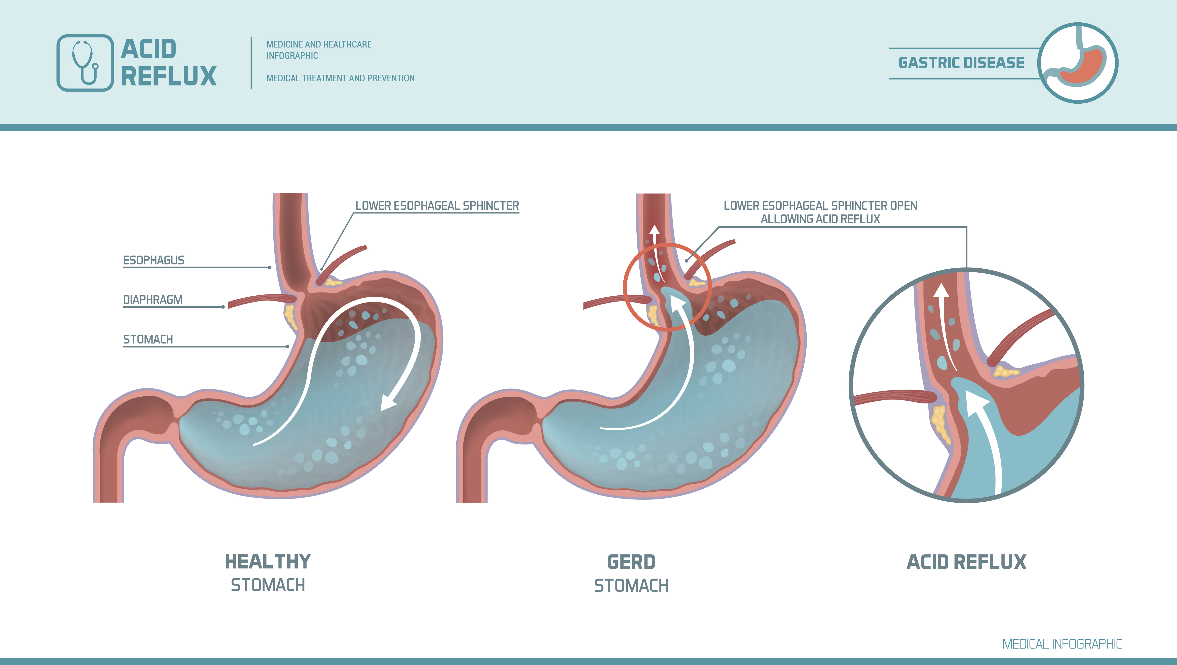 Acid reflux, heartburn and gerd infographic with medical illustration